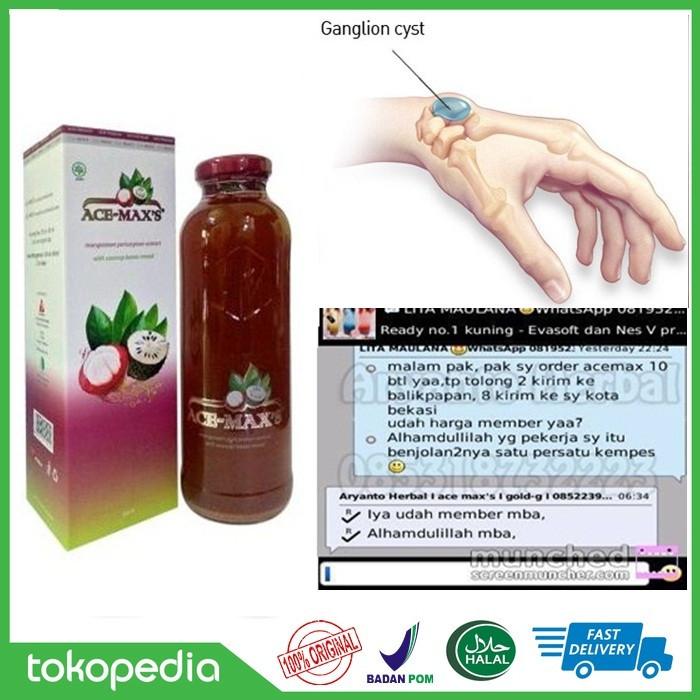 Foto Produk Obat Benjolan Di Pergelangan Tangan (Kista Ganglion) | ACE MAXS ASLI dari Syukur Herbal