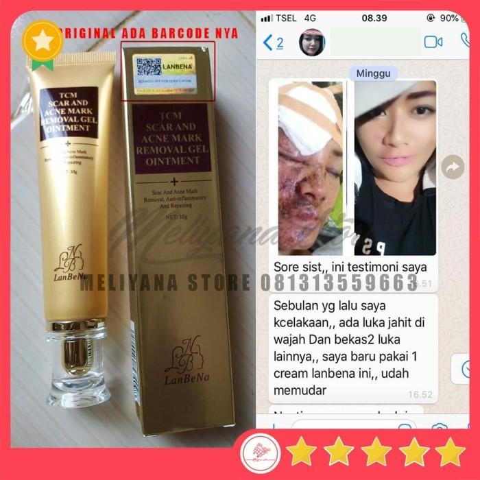 harga Tcm scar and acne mark removal gel ointment lanbena Tokopedia.com