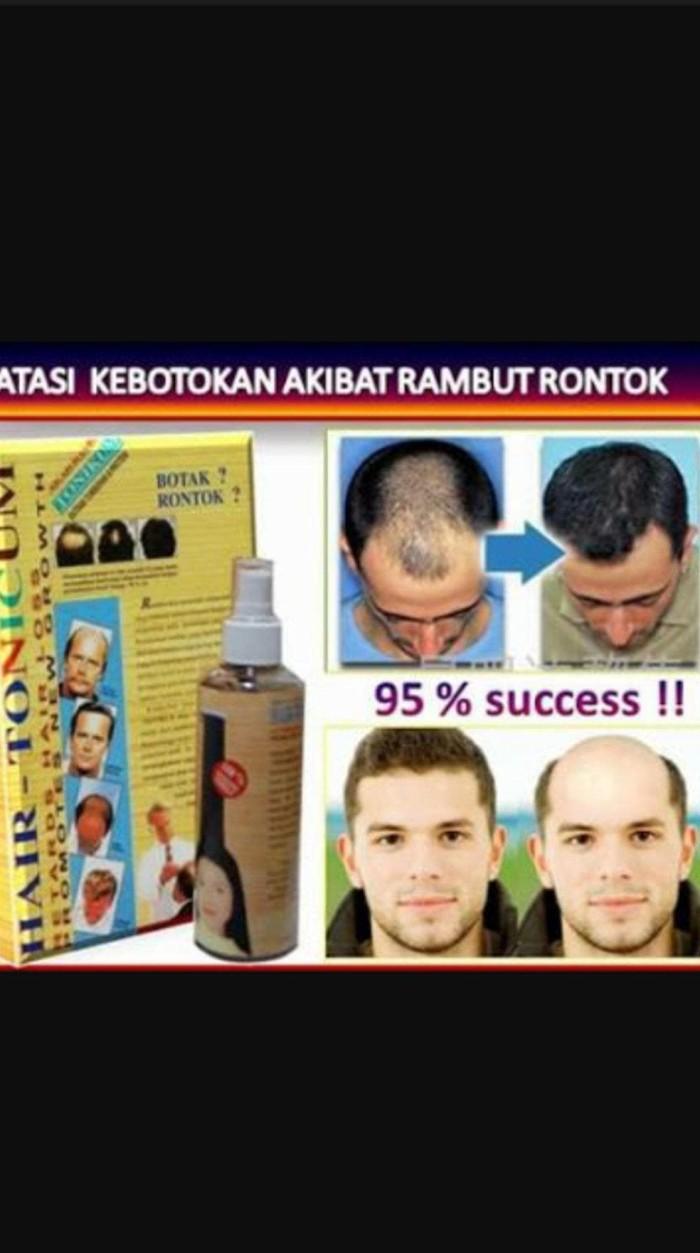 Jual Hair Tonikum Korea Obat Serum Penumbuh Rambut Cepat Ampuh Alami Jakarta Barat Edi Store 2019 Tokopedia