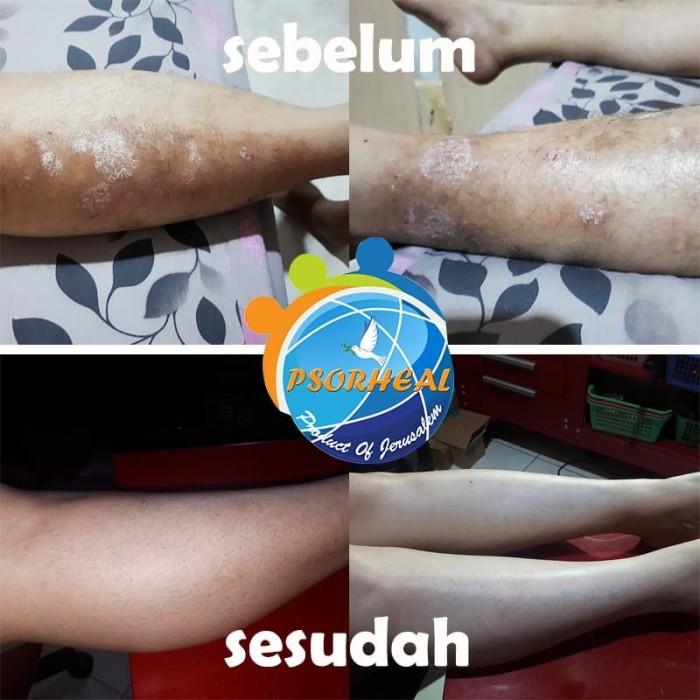 Foto Produk Cream Obat Salep BODY&SKIN Psoriasis PSORHEAL from ISRAEL #MULUS #pagi dari indonesia360store