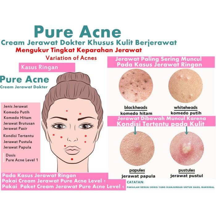 Jual Cream Jerawat Rekomendasi Dokter Khusus Jerawat Ringan Stadium 1 2 Kota Salatiga Ashley Beauty House Tokopedia