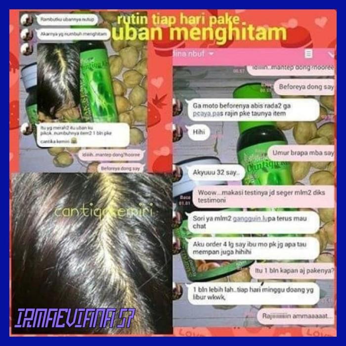 Jual Termurah Penumbuh Rambut Hair Ampuh Dan Cepat Herbal Alami Cantiqa Jakarta Timur Irmaeviana 57 Tokopedia