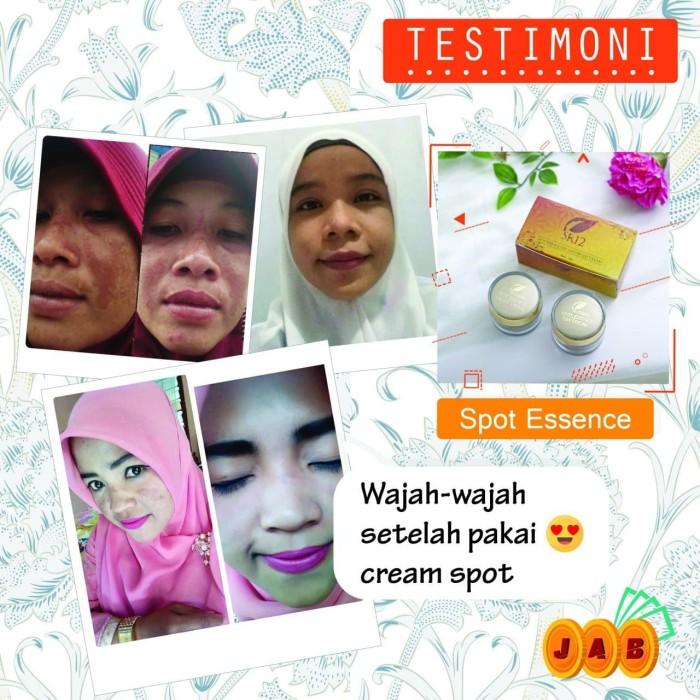 Jual Spot Night Cream Wardah Olay Untuk Menghilangkan Flek Hitam Pada Wajah Kota Tangerang Sr12 Skincare Official Tokopedia