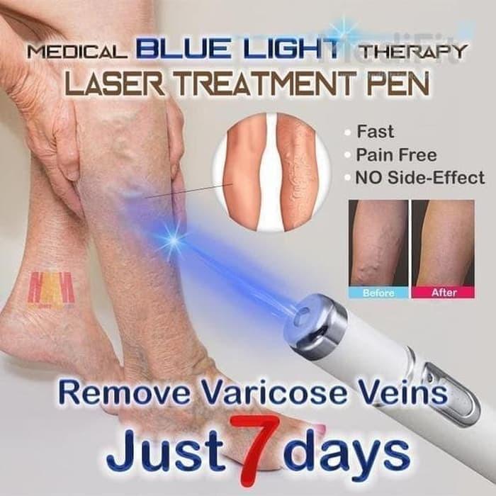 Harga Terapi Laser Untuk Menghilangkan Bekas Jerawat