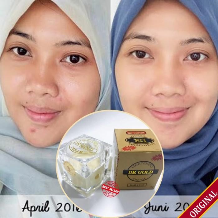 Cream Pemutih Dan Penghilang Jerawat Untuk Usia 15 Tahun