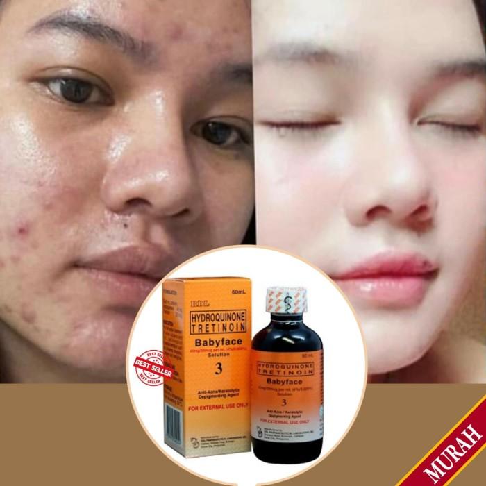Pemutih Kosmetik Wajah Untuk Mengatasi Jerawat Dan Bekas Jerawat Bandel