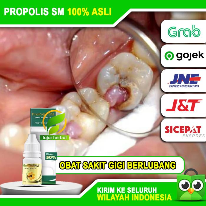 Jual Obat Sakit Gigi Berlubang Gusi Bengkak Dan Nyeri Herbal Tetes Asli Kota Surabaya Smartpedia Tokopedia