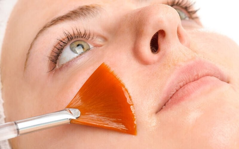 1x Basic Peeling AHA 20% - 35% + Cleansing + Comedo Extraction + MPOW + Peeling Liquid Applied 20% - 35% + Face Massage + Serum Vit.C + Peel Off Mask