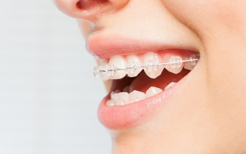 1x Lab Ortho + Dental Scaling for Braces + Polishing + Pemasangan Metal Damon Braces + Consultation - Available by Appointment