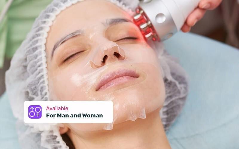 1x Chubby Treatment RF + Facial Whitening Vit C