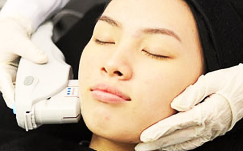 1x Hifu Face 50 Shoot + Cleansing + Anastesi + Topi Cream