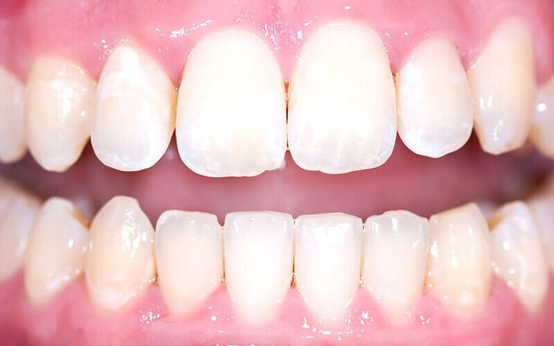 1x Bleaching in Office Premium Quality + Scaling