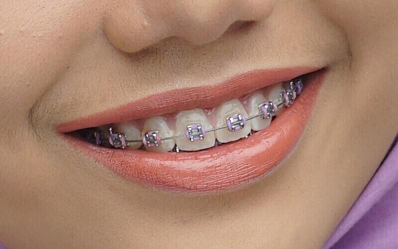 Voucher Potongan Rp. 250.000 Untuk Pemasangan Kawat Gigi Premium