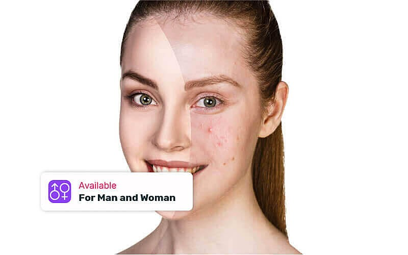 1x Acne Treatment + PDT Theraphy