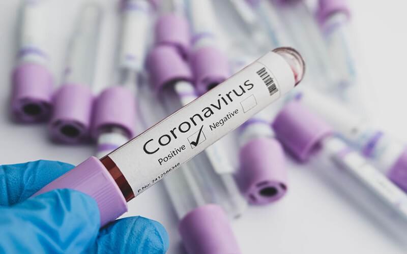 Pemeriksaan Test Covid-19 Swab Antigen - Hasil 60 Menit