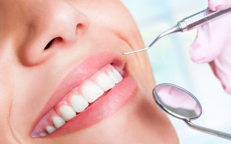 Scaling Pembersihan Karang Gigi + Dental Check Up