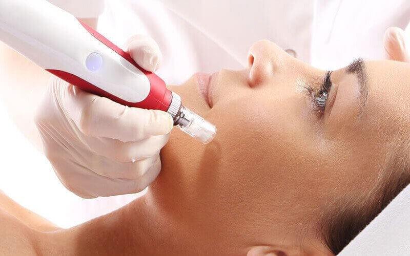 PRP Face + Doctor Consultation + Anti Inflammation Cream