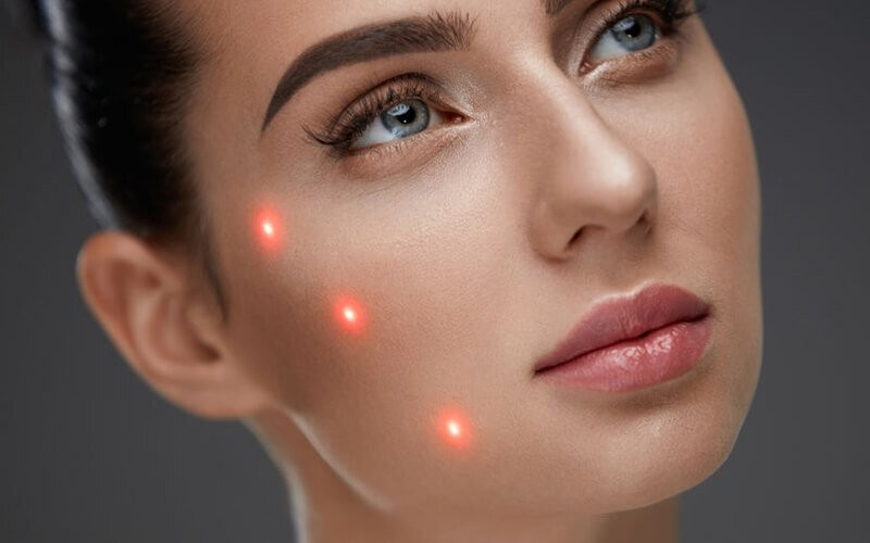 [7.7xBday] Laser Face Rejuvenation Treatment - Available by Appointment