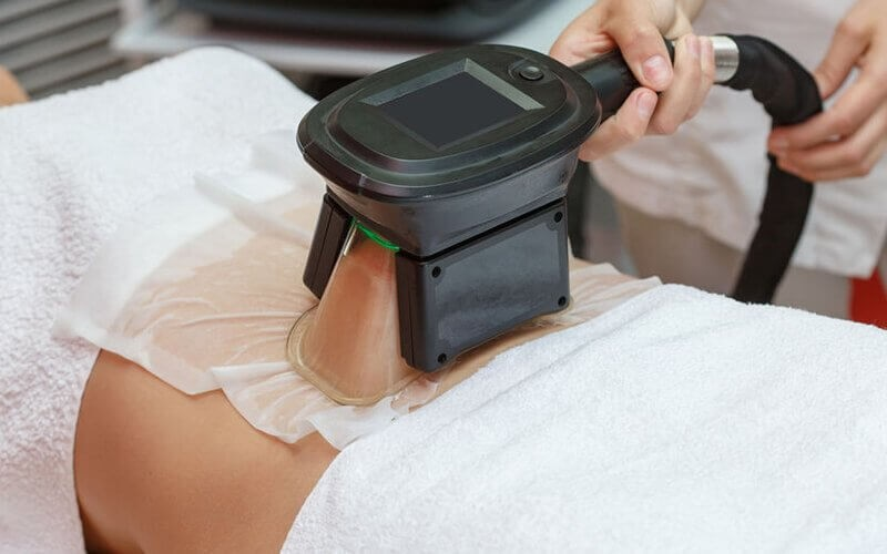 Cool Sculpting by Cryolypolisist Machine for Instant Slimming Treatment (per-area)
