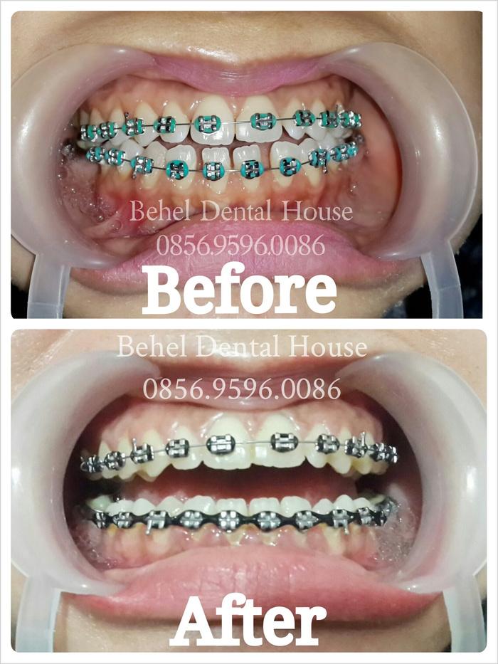 Jual Behel Perawatan Gigi Renggang Behel Dental Shop Tokopedia