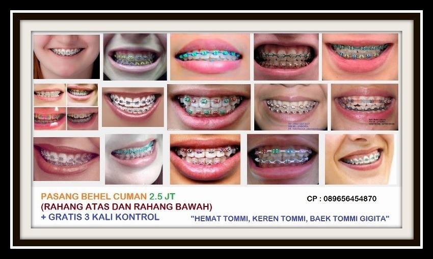 Ahli Behel Gigi Harga Behel Gigi Kesehatan 01 Daftar Harga Behel