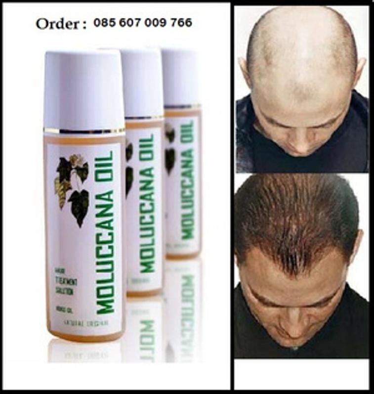 jual penebal rambut tipis,penumbuh rambut jarang,minyak kemiri asli Minyak Kemiri Mengatasi Kebotakan