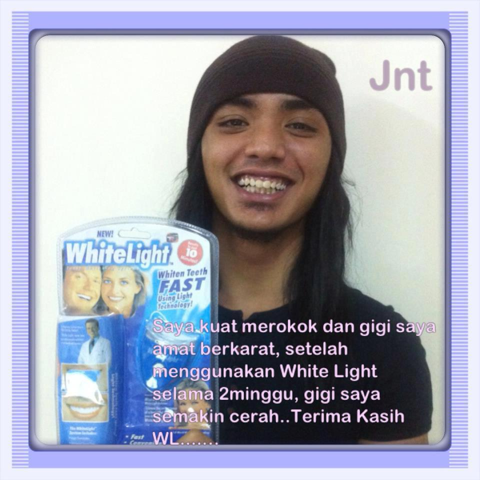 Jual Pemutih Gigi White Light Teeth Whitening Harga Indonesia