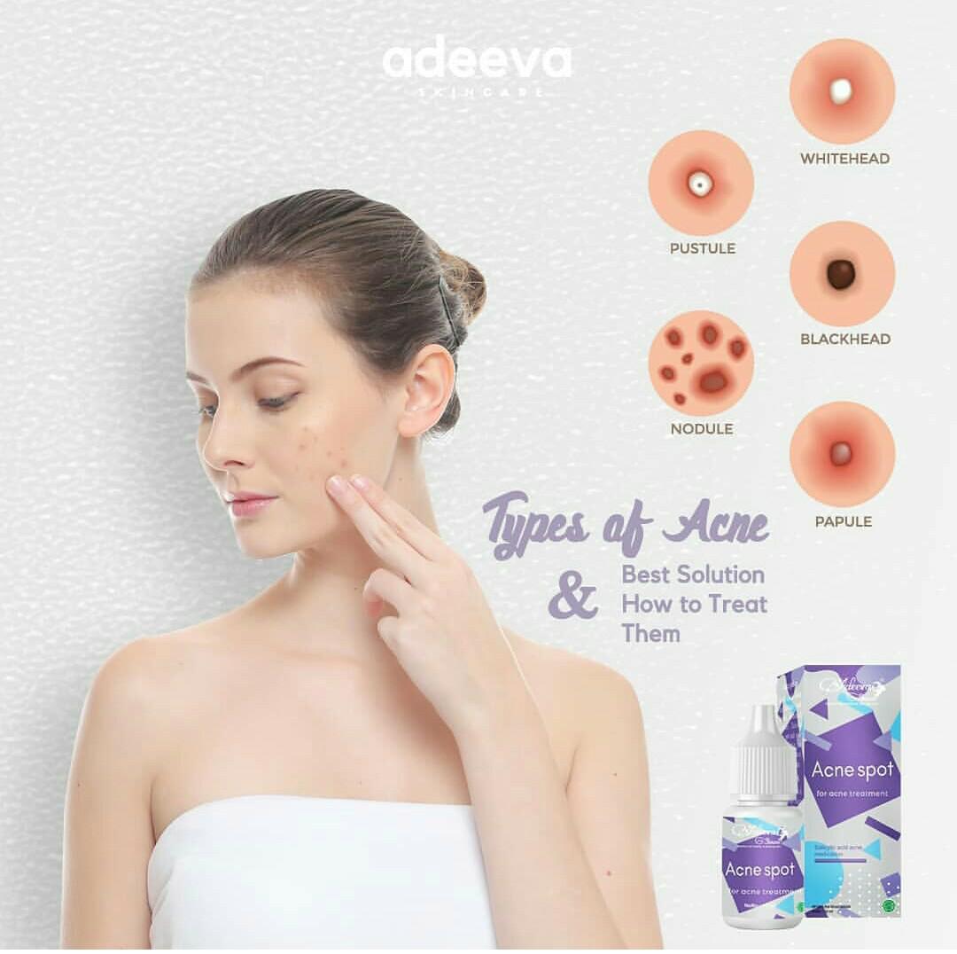 Acne Spot By Adeeva Skincare Daftar Harga Terlengkap Indonesia Calm Cream Atau Calming Gel Adeevaskincare Jual Totol Jerawat Mulyati Tokopedia