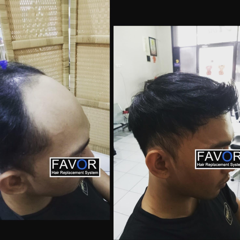 toupee pesanan plus install 1